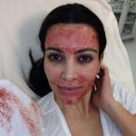 Kim Kardashian's Bloody Face